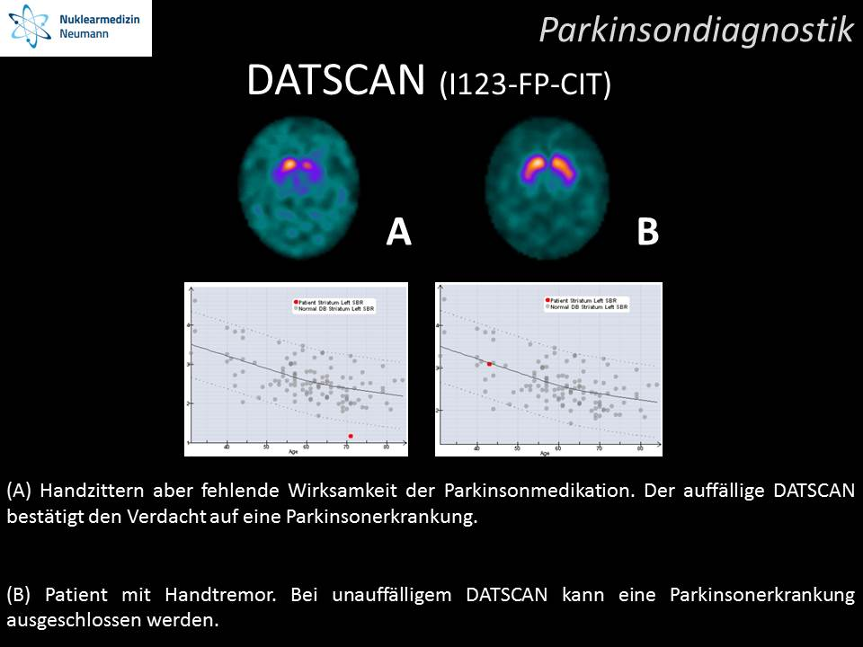 Parkinsondiagnostik (DATSCAN)